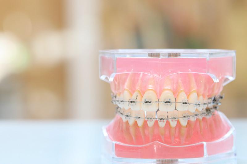 矯正(歯並び)治療